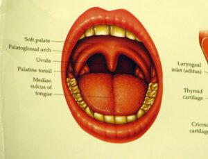 a diagram of an open mouth displaying the back of the throat, the soft palate, palatoglossal arch, palatine tonsil, and median sulcus of the tongue are all labeled
